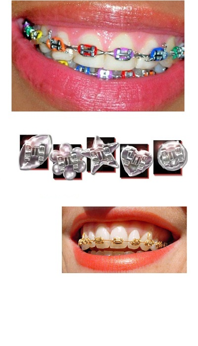 Dental Clinic In Chandigarh 32 Dental Clinic Implant Centre In